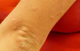 Fototoxische reacties op geneesmiddelen kunnen zowel na inwendige therapie als na lokale toepassing ontstaan.